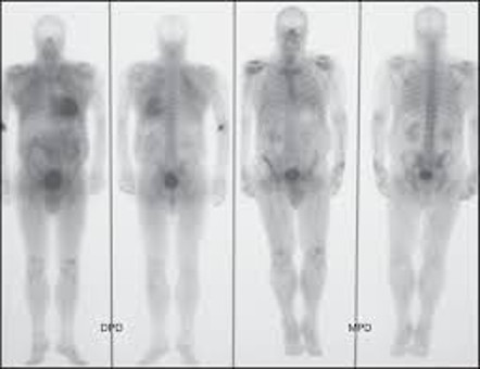 scintigraphy